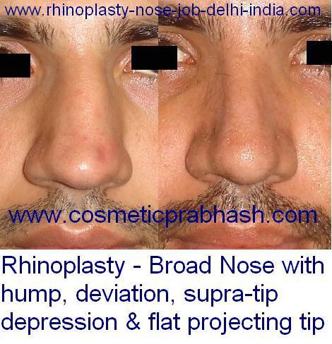 Broad nose reduction rhinoplasty