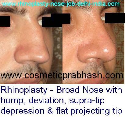 Rhinoplasty hump reduction wide nose correction