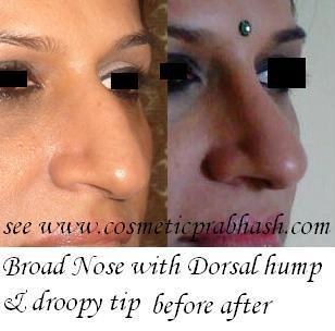 Rhinoplasty dorsal hump drooping tip broad nose